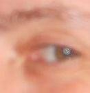 Augen-4